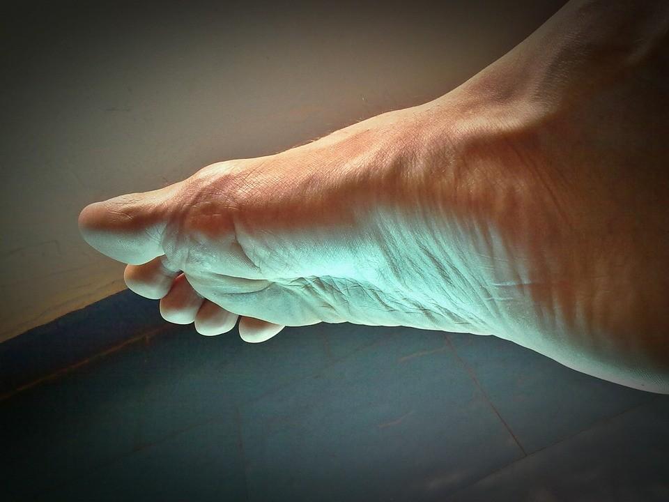 popraskane paty bolest