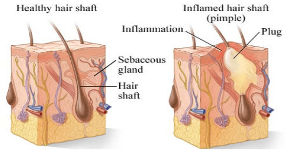 Acne-Inflammation-Image