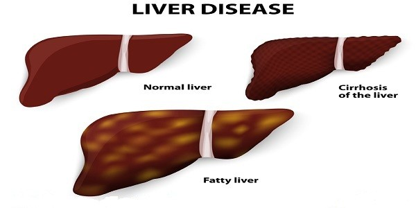fatty-liver-symptoms-and-how-to-heal-them