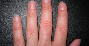 1200px-Fingernails2